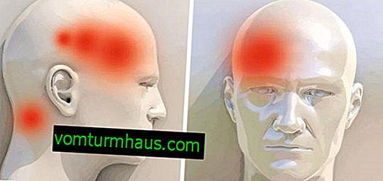 Korijen đumbira za bol u glavi: pomažu li pravila upotrebe?